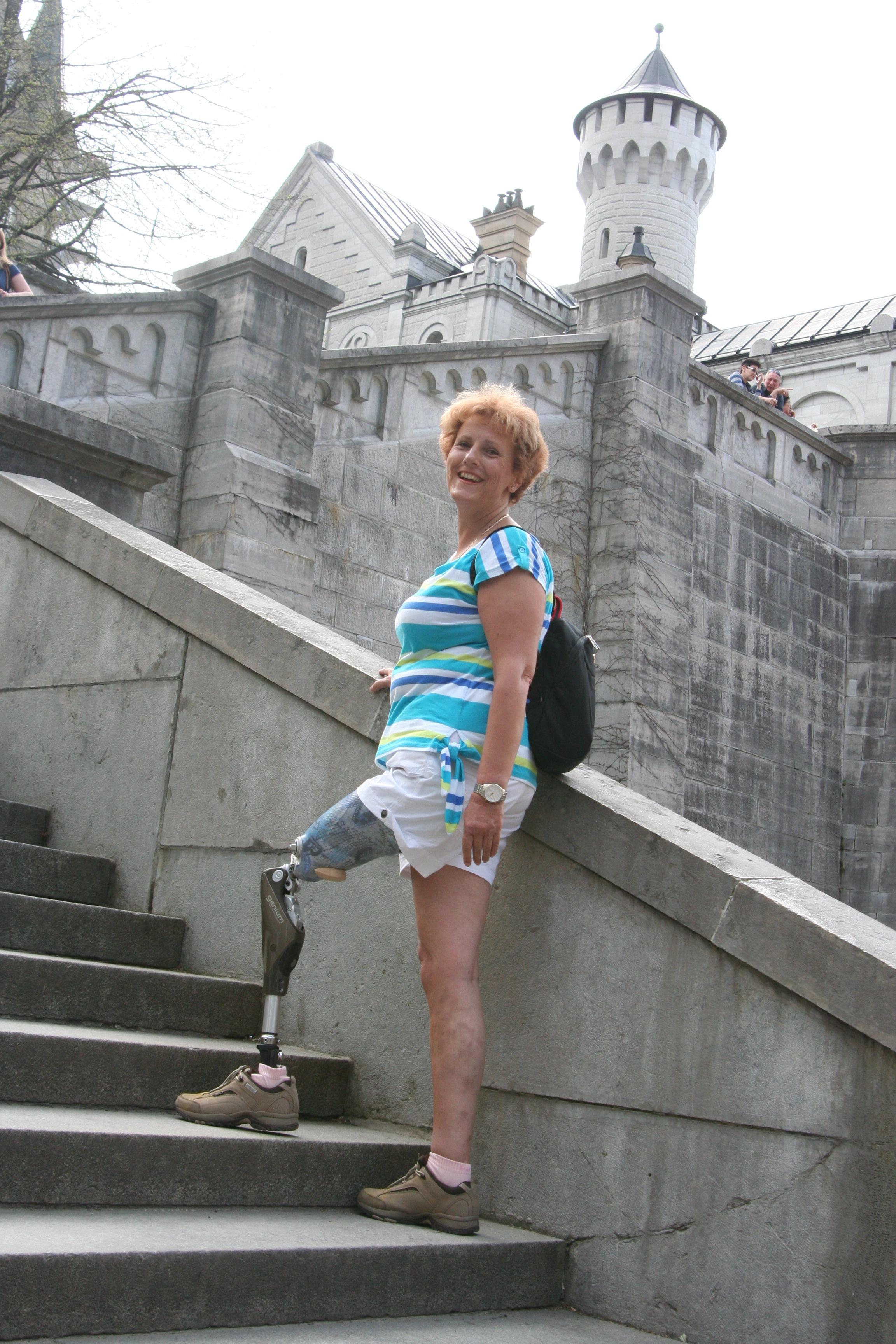Frau prothese amputierte Einbeinig aber
